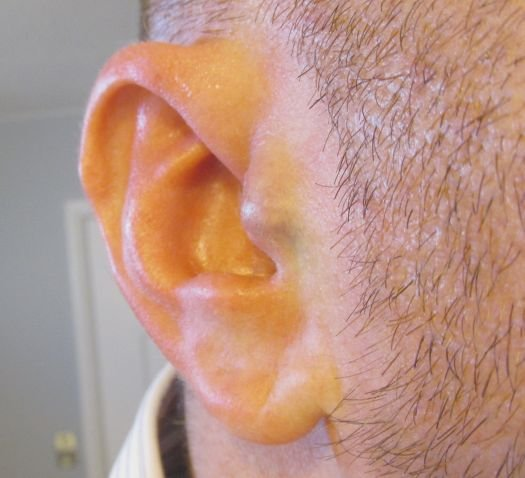 earcl This guy implanted headphones in his own ears