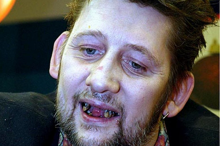 The Pogues Shane Macgowan Made A Documentary About His New Set Of