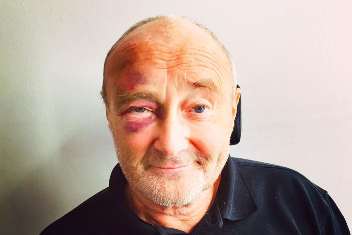 Phil Collins postpones comebac...