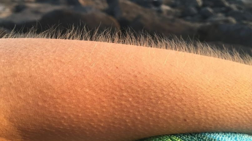People Who Get Goosebumps While Listening To Music Are