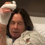 Ozzy Osbourne Hand Surgery