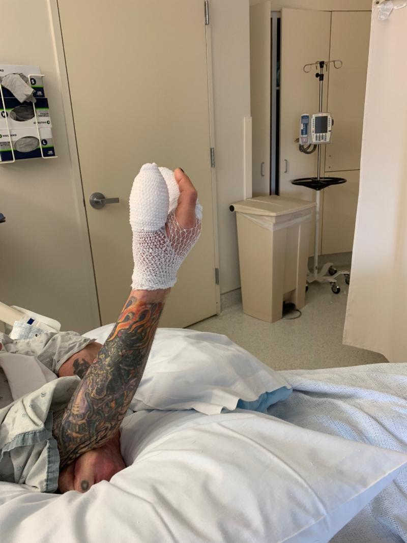 Ozzy Osbourne's Bandaged Hand