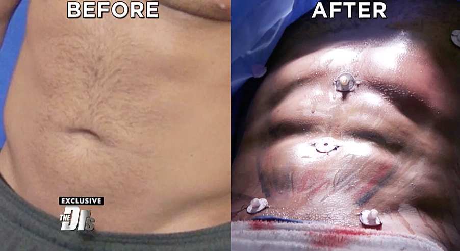 Ronnie's Abs before and after