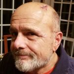 Joe Pantoliano car accident